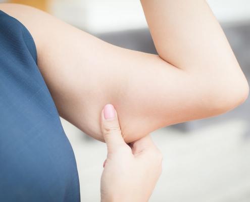 cellulite braccia